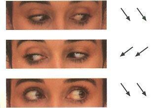 ejercicio ocular