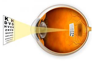 ojo miopia