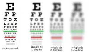 gafas miopia