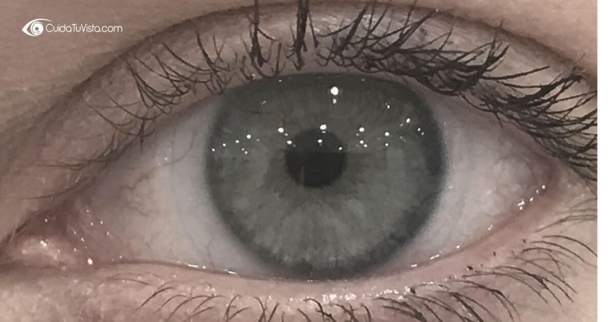 Me tiembla el párpado del ojo
