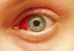 derrame ocular o derrame en los ojos