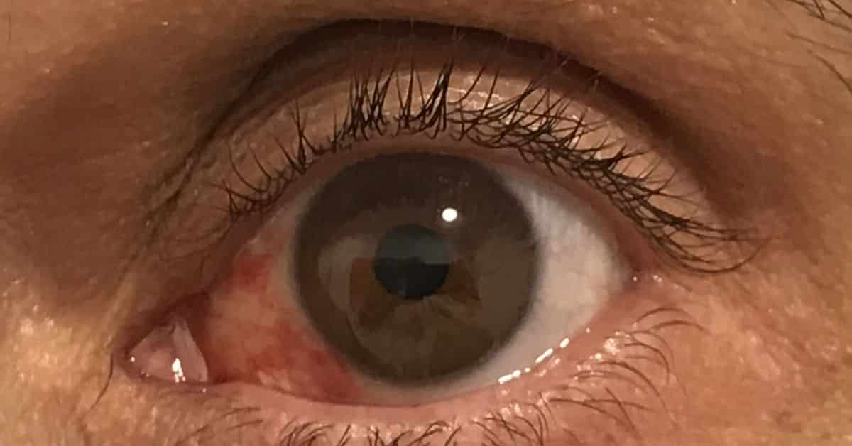 que hacer derrame en el ojo